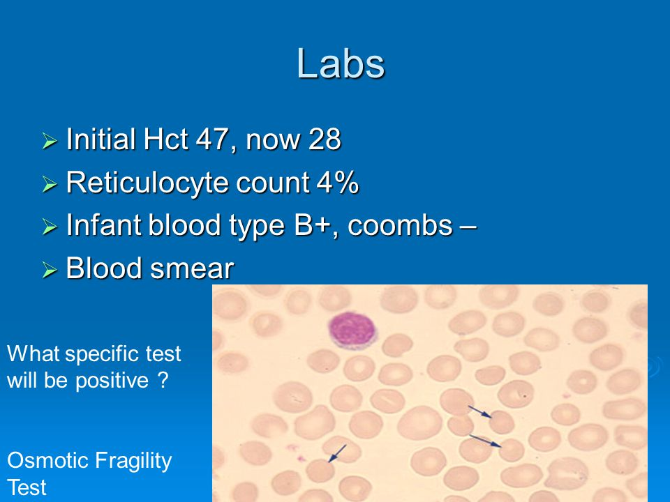 Labs Labs  Initial Hct 47, now 28  Reticulocyte count 4%  Infant blood type B+, coombs –  Blood smear What specific test will be positive ? Osmoti