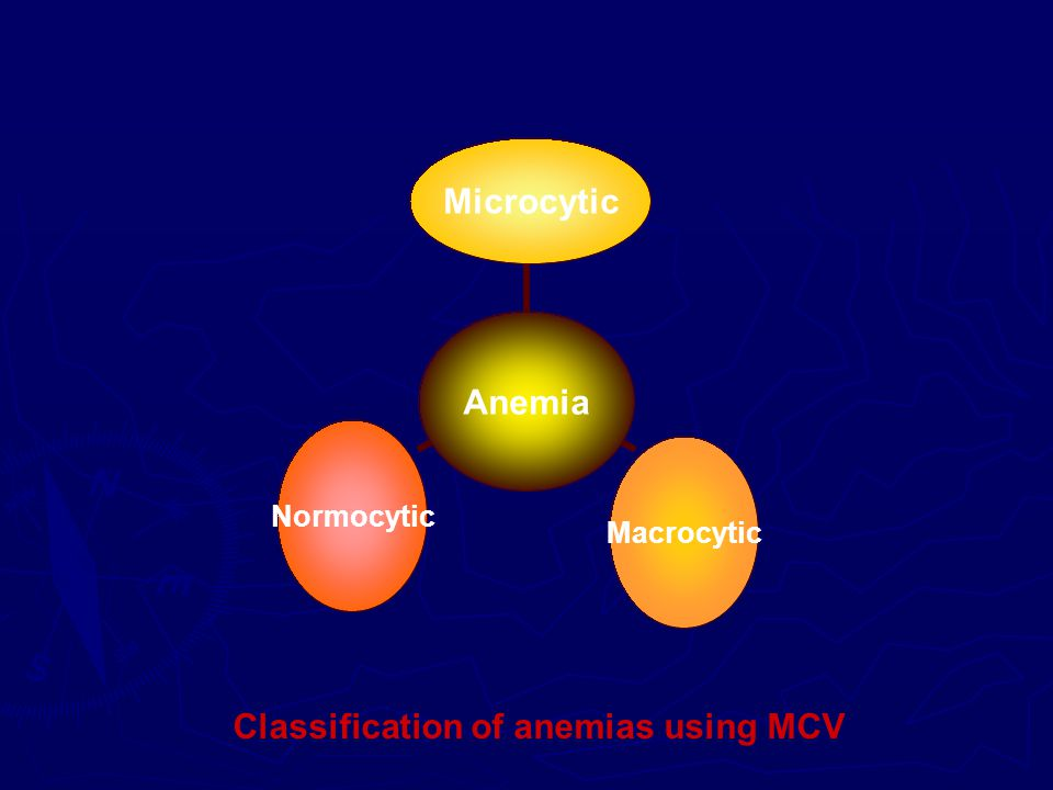 Anemia MicrocyticMacrocyticNormocytic Classification of anemias using MCV