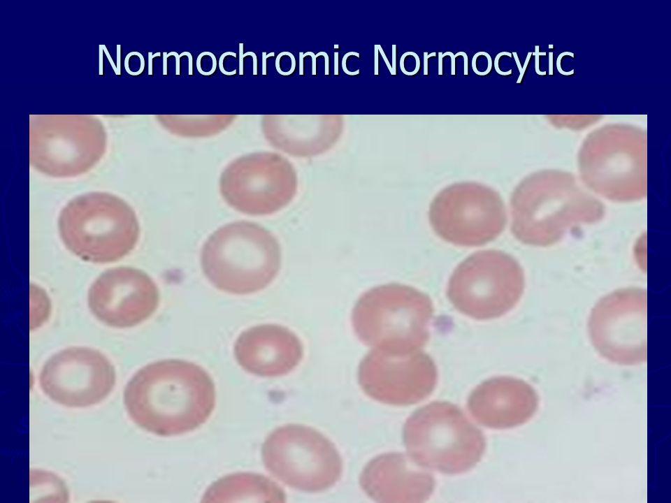 Normochromic Normocytic