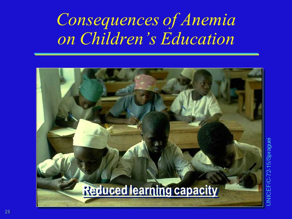 25 Consequences of Anemia on Children's Education UNICEF/C-72-15/Spraguei Reduced learning capacity