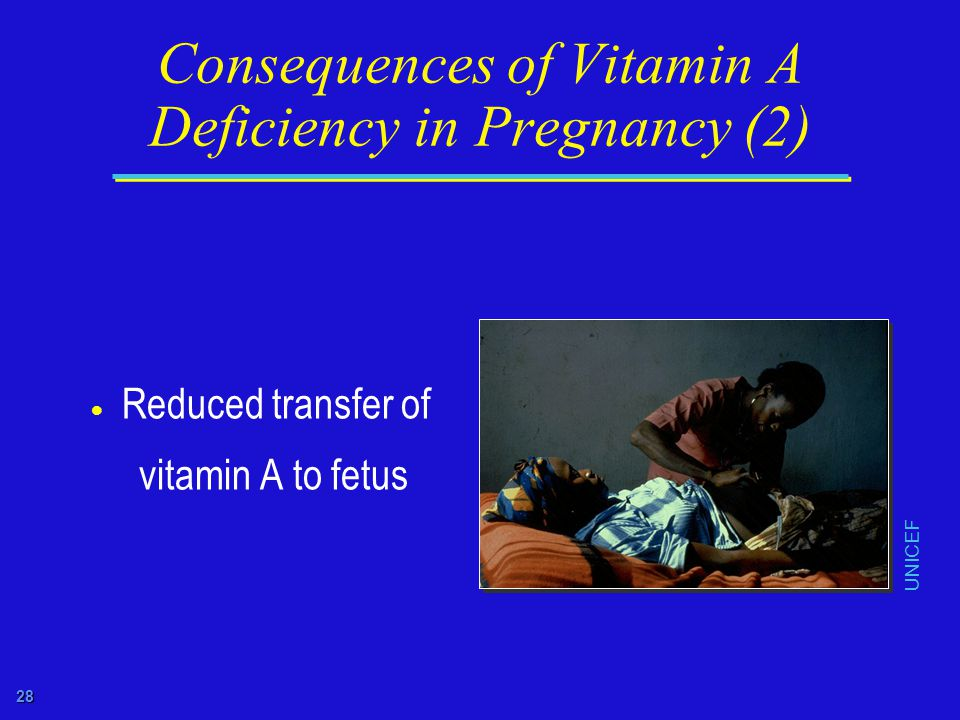 28 Consequences of Vitamin A Deficiency in Pregnancy (2)  Reduced transfer of vitamin A to fetus UNICEF