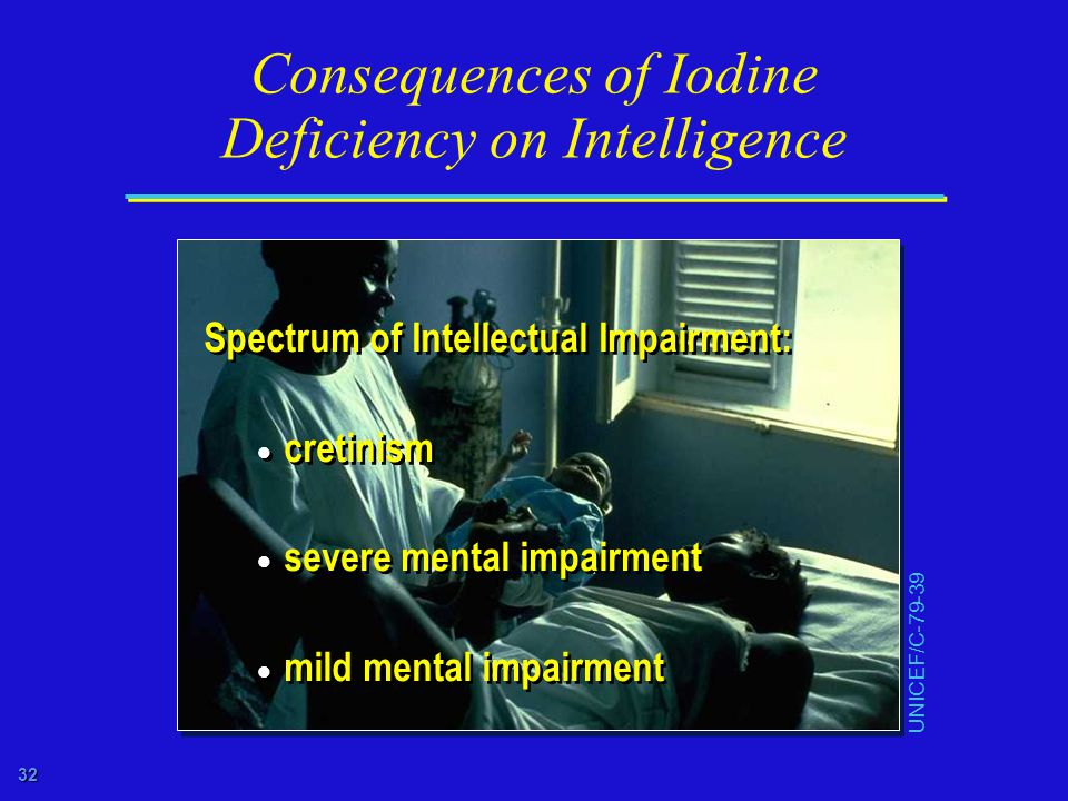 32 Consequences of Iodine Deficiency on Intelligence Spectrum of Intellectual Impairment:  cretinism  severe mental impairment  mild mental impairment Spectrum of Intellectual Impairment:  cretinism  severe mental impairment  mild mental impairment UNICEF/C-79-39