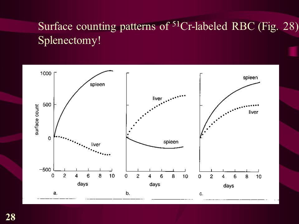 28 Surface counting patterns of 51 Cr-labeled RBC (Fig. 28) Splenectomy!