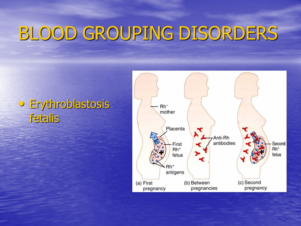 BLOOD GROUPING DISORDERS Erythroblastosis fetalis Erythroblastosis fetalis