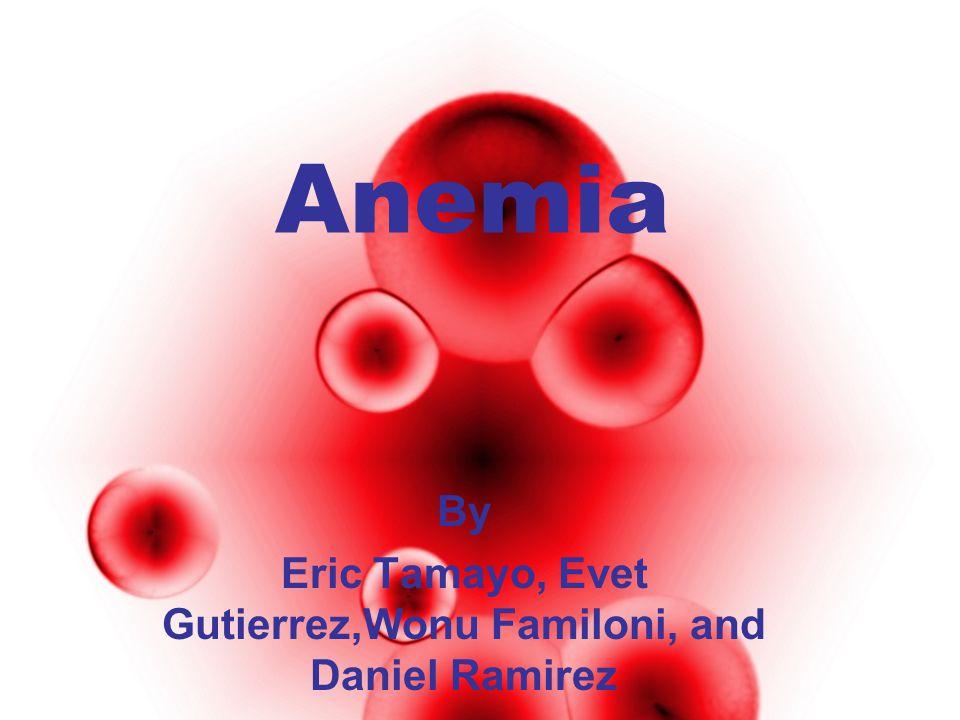 Anemia By Eric Tamayo, Evet Gutierrez,Wonu Familoni, and Daniel Ramirez