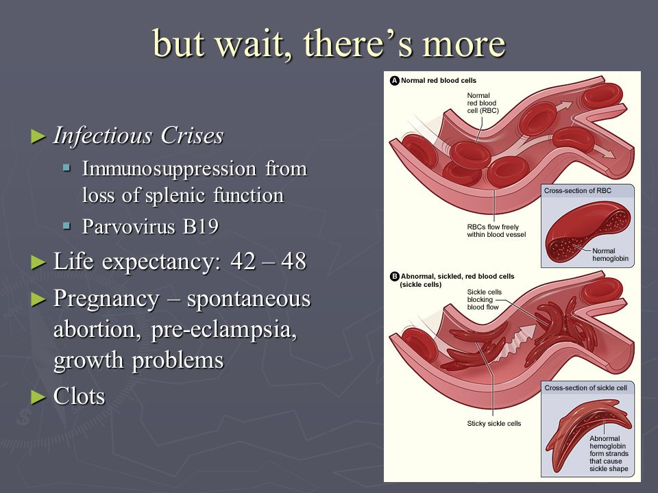 but wait, there's more ► Infectious Crises  Immunosuppression from loss of splenic function  Parvovirus B19 ► Life expectancy: 42 – 48 ► Pregnancy – spontaneous abortion, pre-eclampsia, growth problems ► Clots
