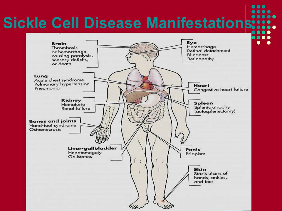Sickle Cell Disease Manifestations