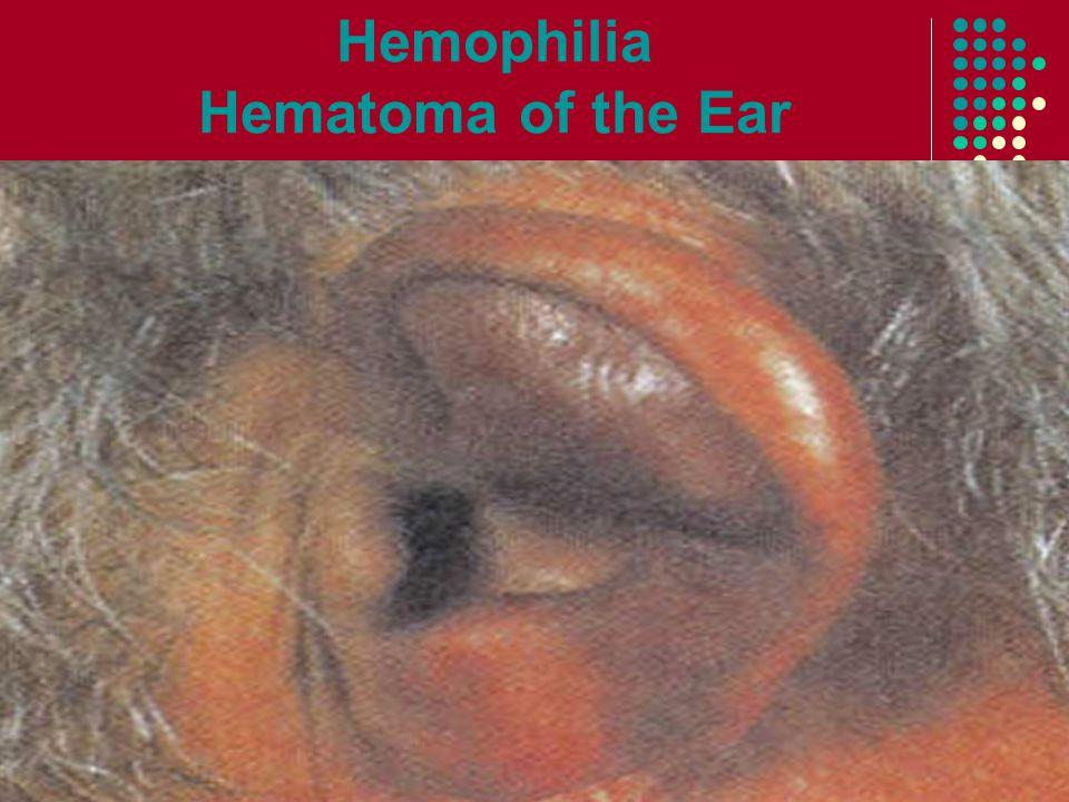 Hemophilia Hematoma of the Ear