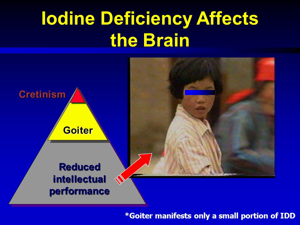 Iodine Deficiency Affects the Brain Reduced intellectual performance Goiter Cretinism *Goiter manifests only a small portion of IDD