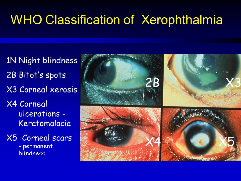 WHO Classification of Xerophthalmia 2B 1N Night blindness 2B Bitot's spots X3 Corneal xerosis X4 Corneal ulcerations - Keratomalacia X5 Corneal scars