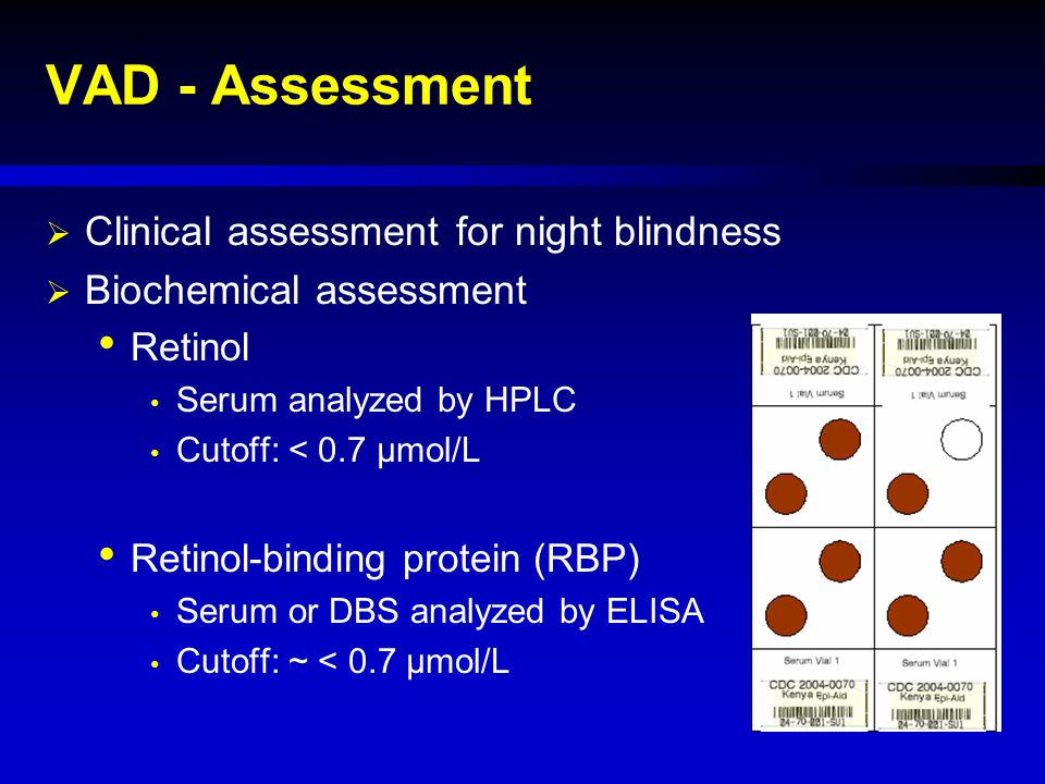 VAD - Assessment  Clinical assessment for night blindness  Biochemical assessment Retinol Serum analyzed by HPLC Cutoff: < 0.7 µmol/L Retinol-bindin