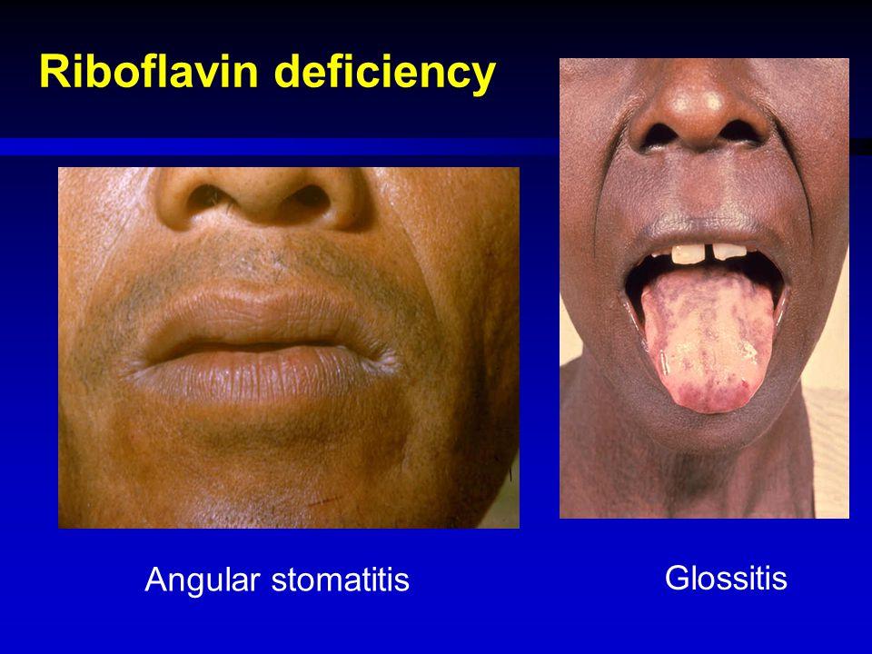 Riboflavin deficiency Angular stomatitis Glossitis