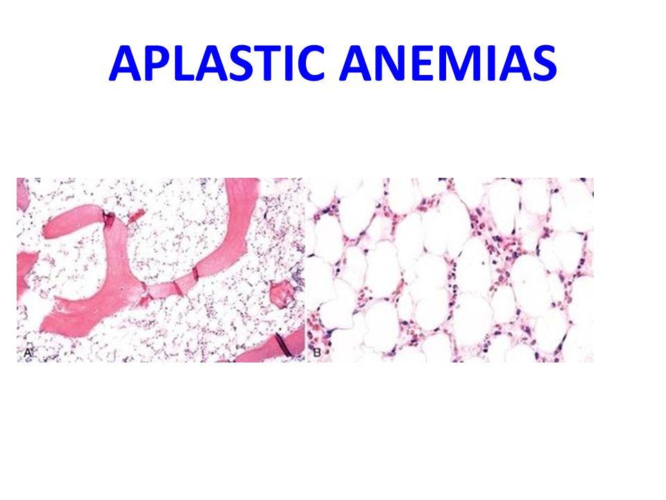 APLASTIC ANEMIAS