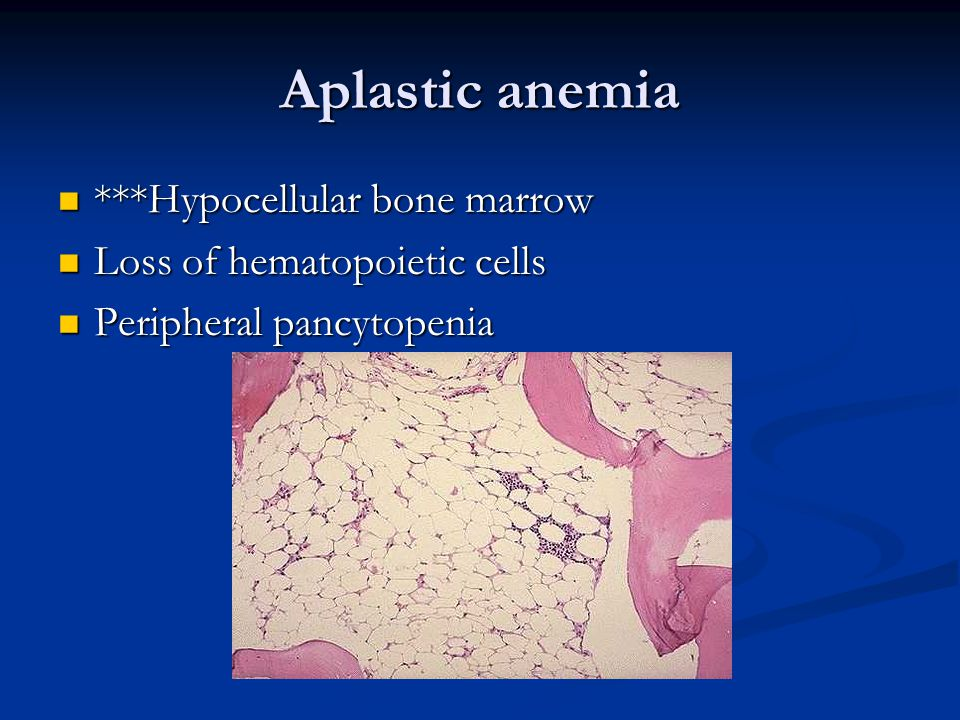 Aplastic anemia ***Hypocellular bone marrow ***Hypocellular bone marrow Loss of hematopoietic cells Loss of hematopoietic cells Peripheral pancytopenia Peripheral pancytopenia