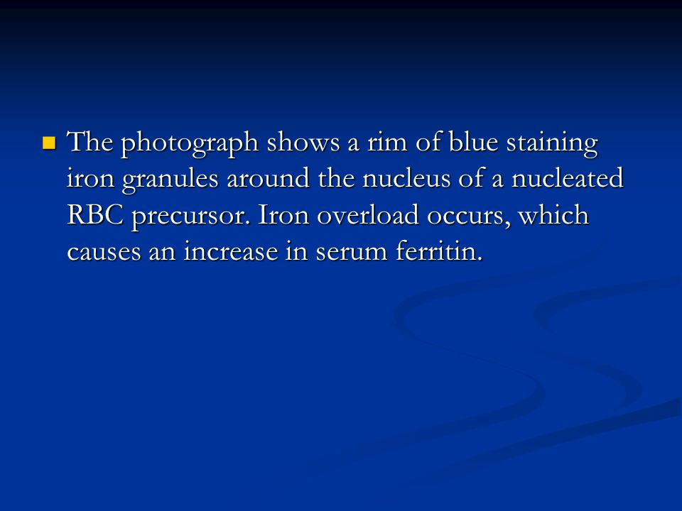 The photograph shows a rim of blue staining iron granules around the nucleus of a nucleated RBC precursor.