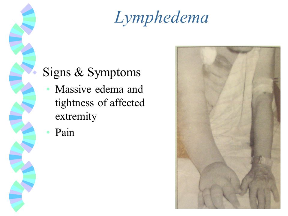 Lymphedema w Signs & Symptoms Massive edema and tightness of affected extremity Pain