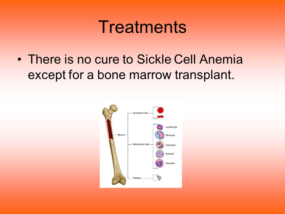 Treatments There is no cure to Sickle Cell Anemia except for a bone marrow transplant.