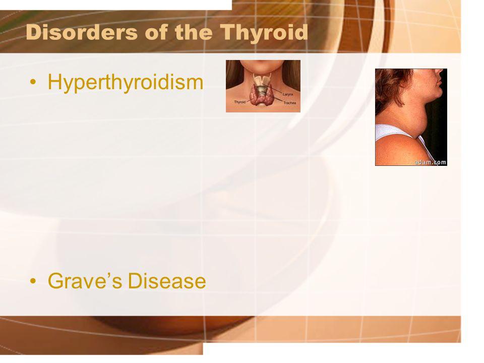 Disorders of the Thyroid Hyperthyroidism Grave's Disease