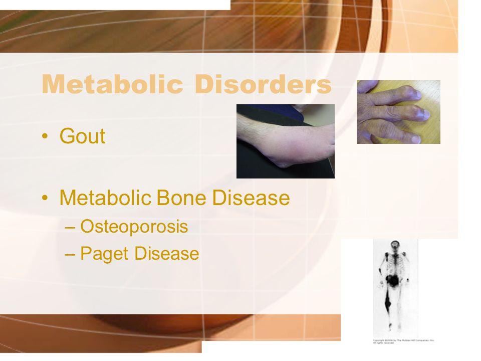 Metabolic Disorders Gout Metabolic Bone Disease –Osteoporosis –Paget Disease