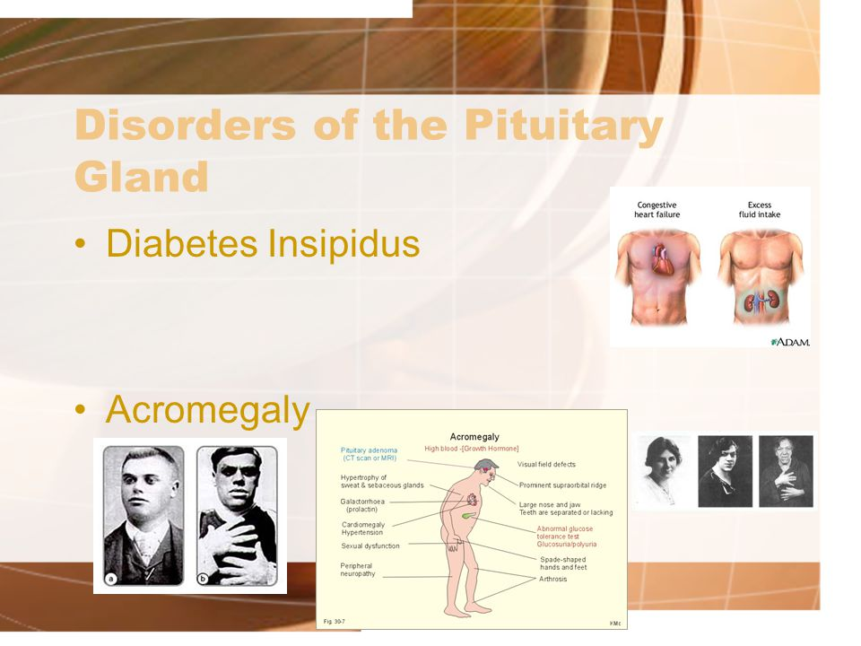 Disorders of the Pituitary Gland Diabetes Insipidus Acromegaly