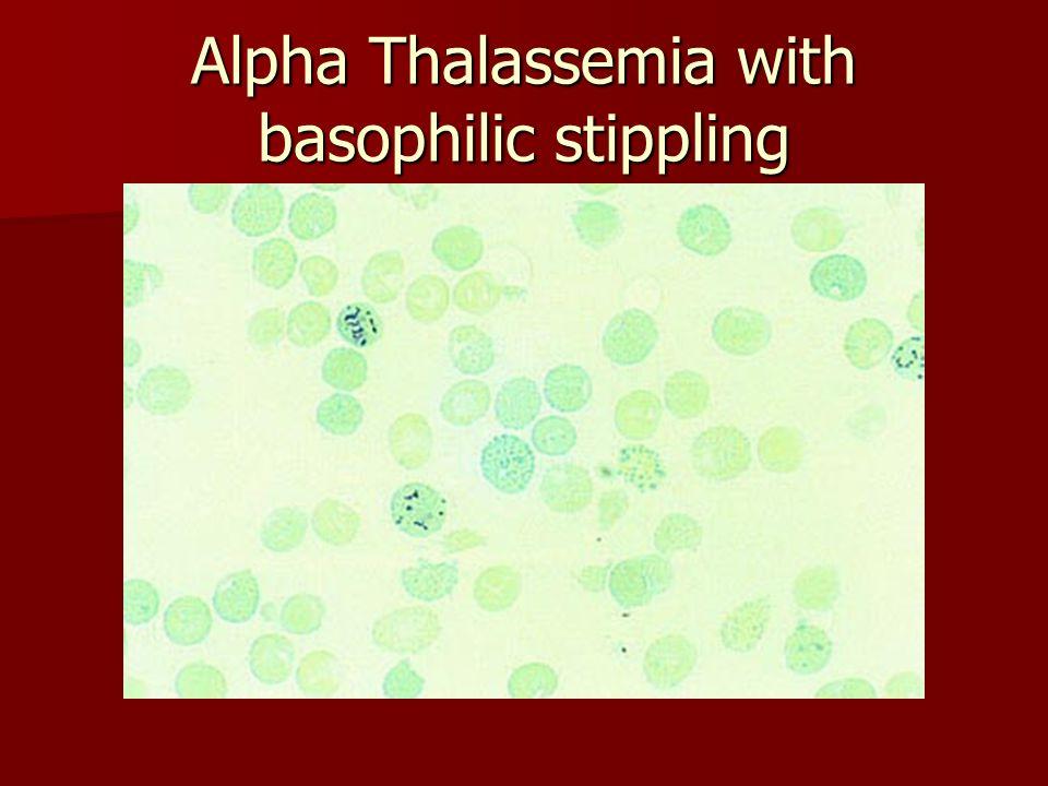 Alpha Thalassemia with basophilic stippling