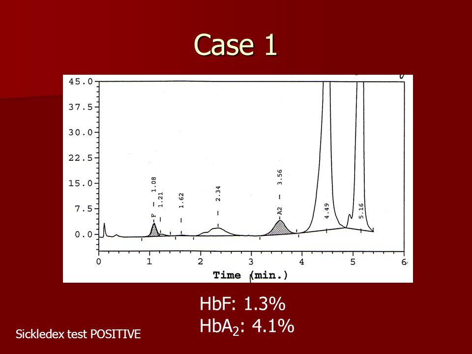 Case 1 HbF: 1.3% HbA 2 : 4.1% Sickledex test POSITIVE