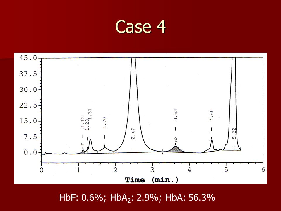 Case 4 HbF: 0.6%; HbA 2 : 2.9%; HbA: 56.3%