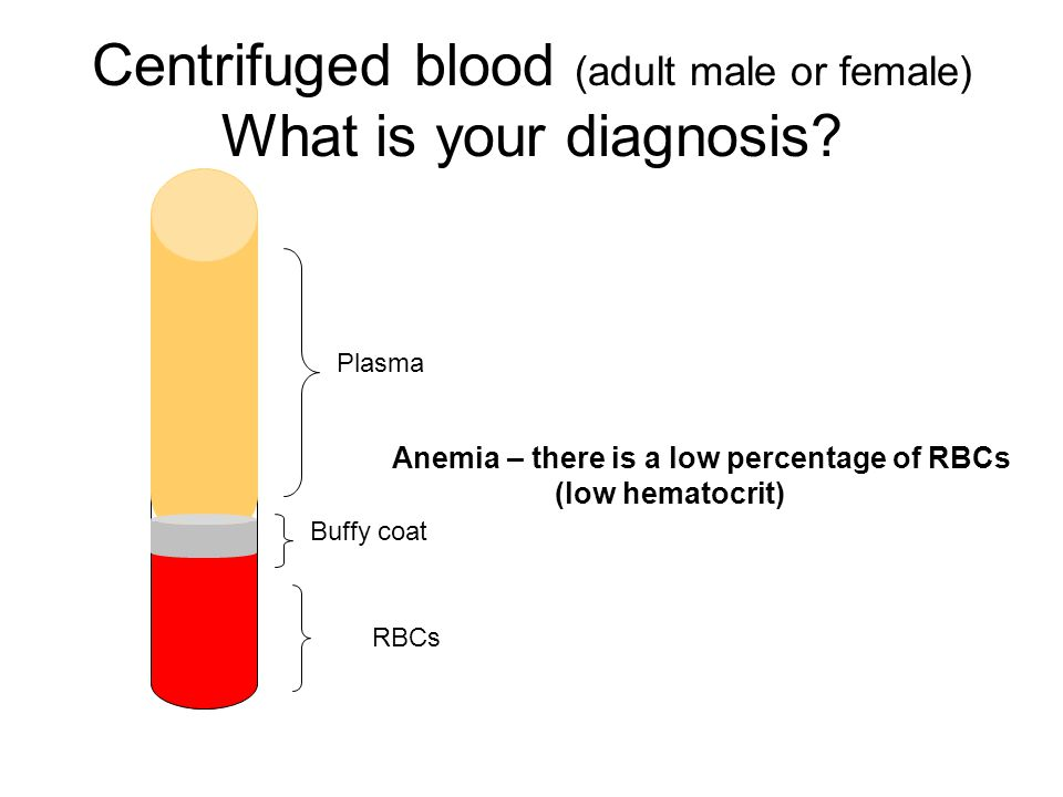 Centrifuged blood (adult male or female) What is your diagnosis? Anemia – there is a low percentage of RBCs (low hematocrit) RBCs Buffy coat Plasma