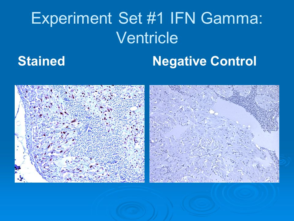 Experiment Set #1 IFN Gamma: Ventricle StainedNegative Control