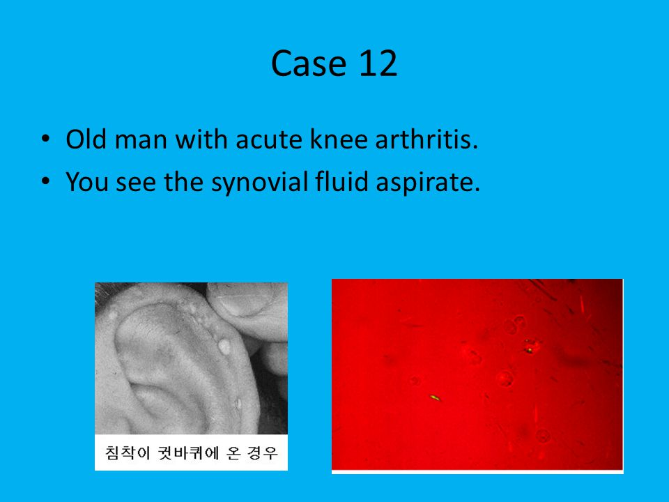 Case 12 Old man with acute knee arthritis. You see the synovial fluid aspirate.