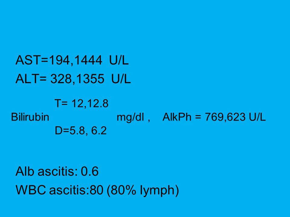 AST=194,1444 U/L ALT= 328,1355 U/L Alb ascitis: 0.6 WBC ascitis:80 (80% lymph) T= 12,12.8 Bilirubin mg/dl, AlkPh = 769,623 U/L D=5.8, 6.2