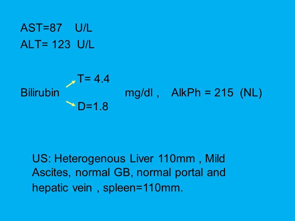 AST=87 U/L ALT= 123 U/L T= 4.4 Bilirubin mg/dl, AlkPh = 215 (NL) D=1.8 US: Heterogenous Liver 110mm, Mild Ascites, normal GB, normal portal and hepati