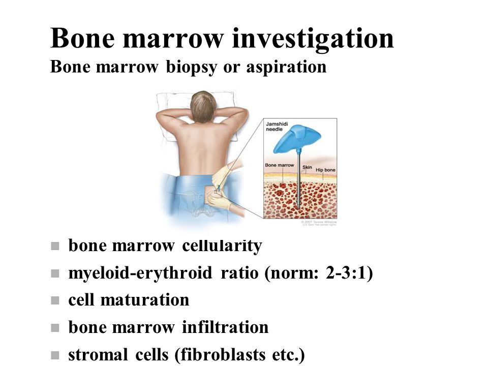 Bone marrow investigation Bone marrow biopsy or aspiration n bone marrow cellularity n myeloid-erythroid ratio (norm: 2-3:1) n cell maturation n bone marrow infiltration n stromal cells (fibroblasts etc.)