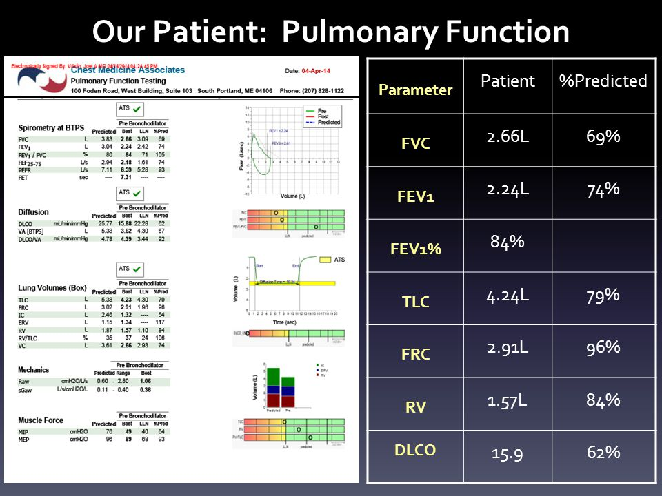 Our Patient: Pulmonary Function Parameter Patient%Predicted FVC 2.66L69% FEV1 2.24L74% FEV1% 84% TLC 4.24L79% FRC 2.91L96% RV 1.57L84% DLCO 15.962%