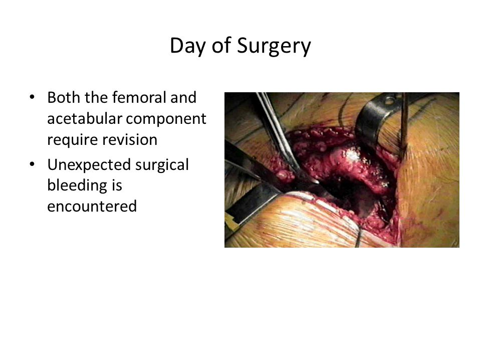 Day of Surgery Both the femoral and acetabular component require revision Unexpected surgical bleeding is encountered
