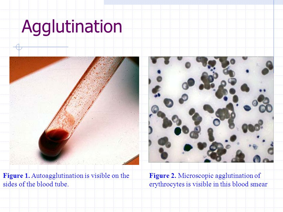 Agglutination Figure 1. Autoagglutination is visible on the sides of the blood tube.