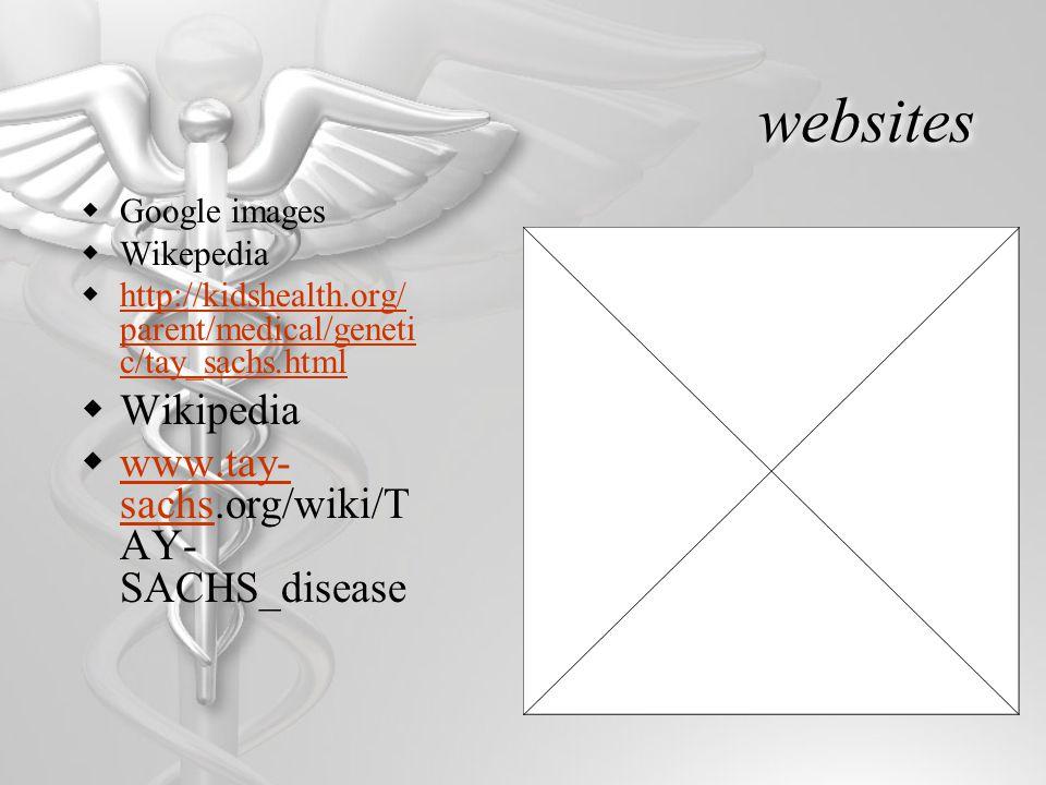 websites  Google images  Wikepedia  http://kidshealth.org/ parent/medical/geneti c/tay_sachs.html http://kidshealth.org/ parent/medical/geneti c/ta