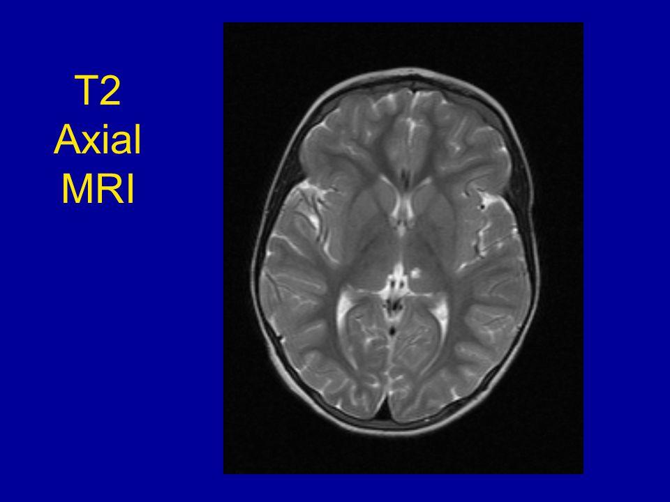 T2 Axial MRI