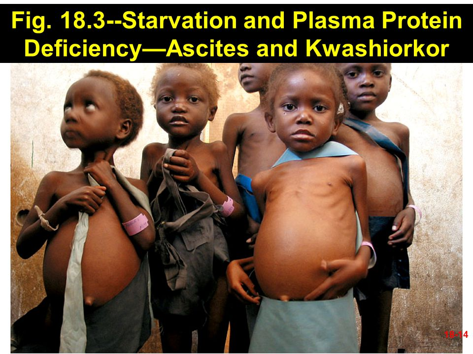 Fig. 18.3--Starvation and Plasma Protein Deficiency—Ascites and Kwashiorkor 18-14