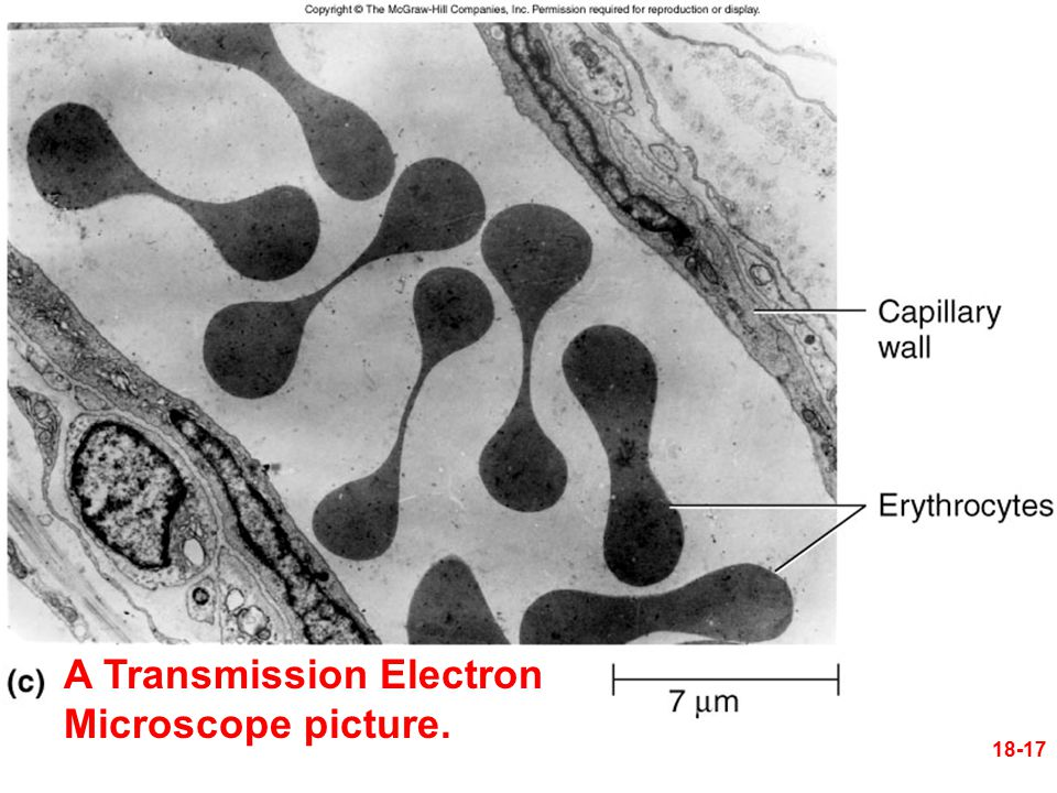Figure 18.4c 18-17 A Transmission Electron Microscope picture.
