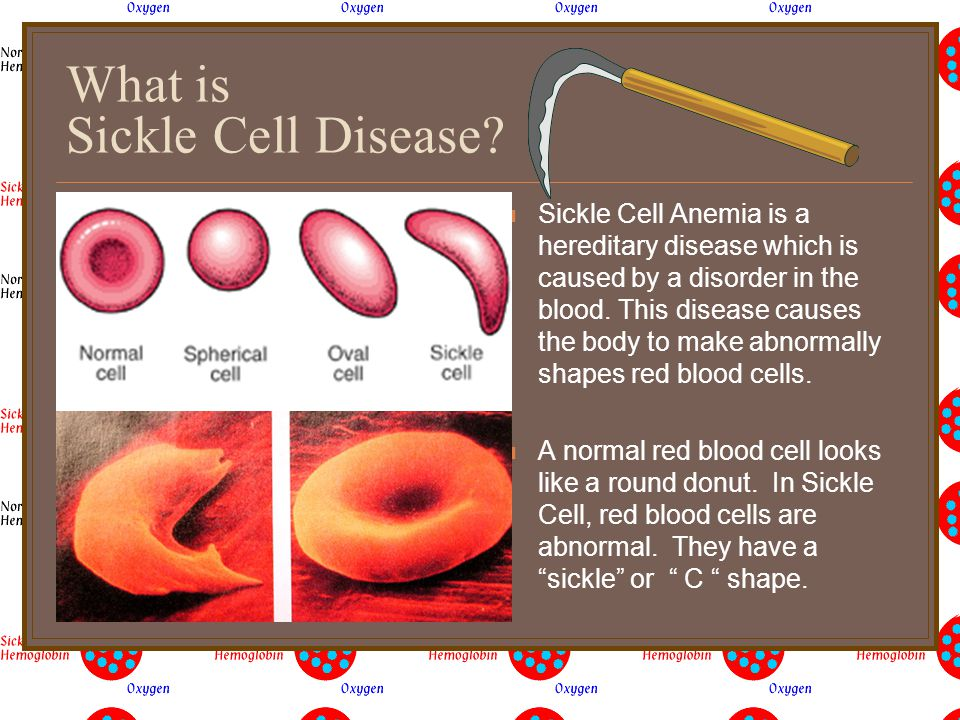 Agenda/Announcements What is Sickle Cell Why is it important for me to know about Sickle Cell