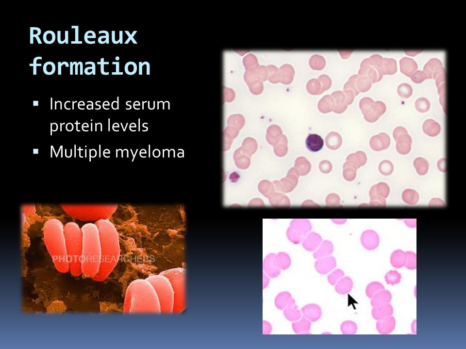 Rouleaux formation  Increased serum protein levels  Multiple myeloma
