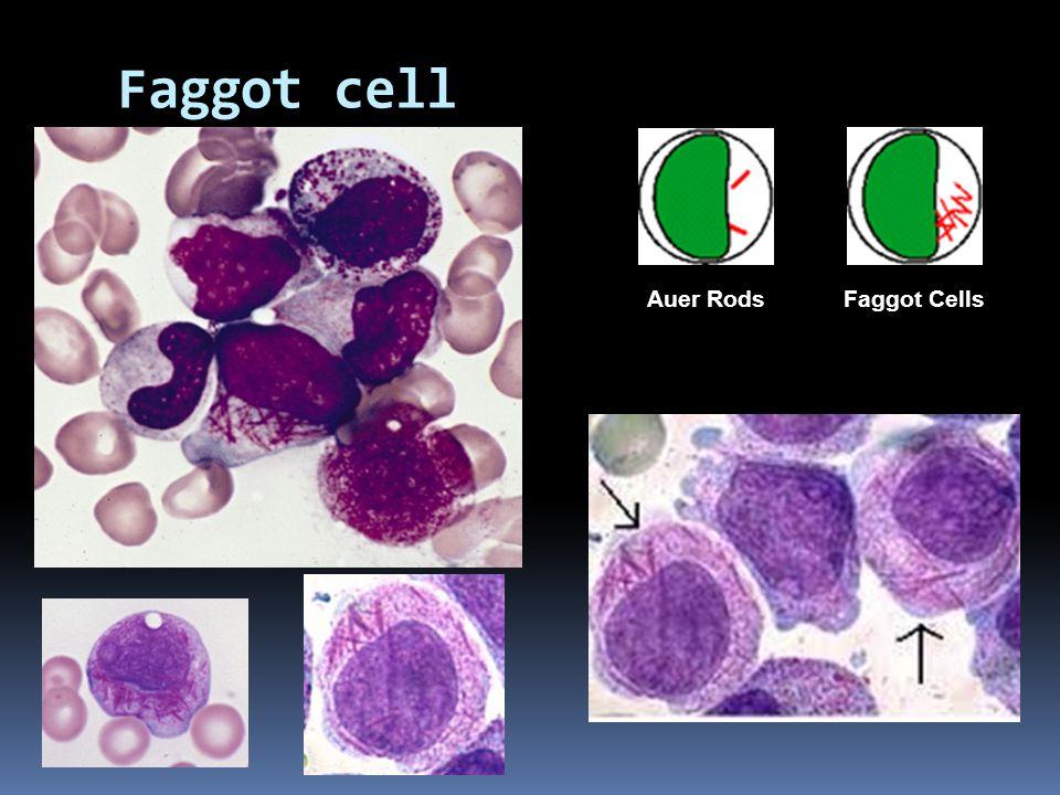 Faggot cell Auer RodsFaggot Cells