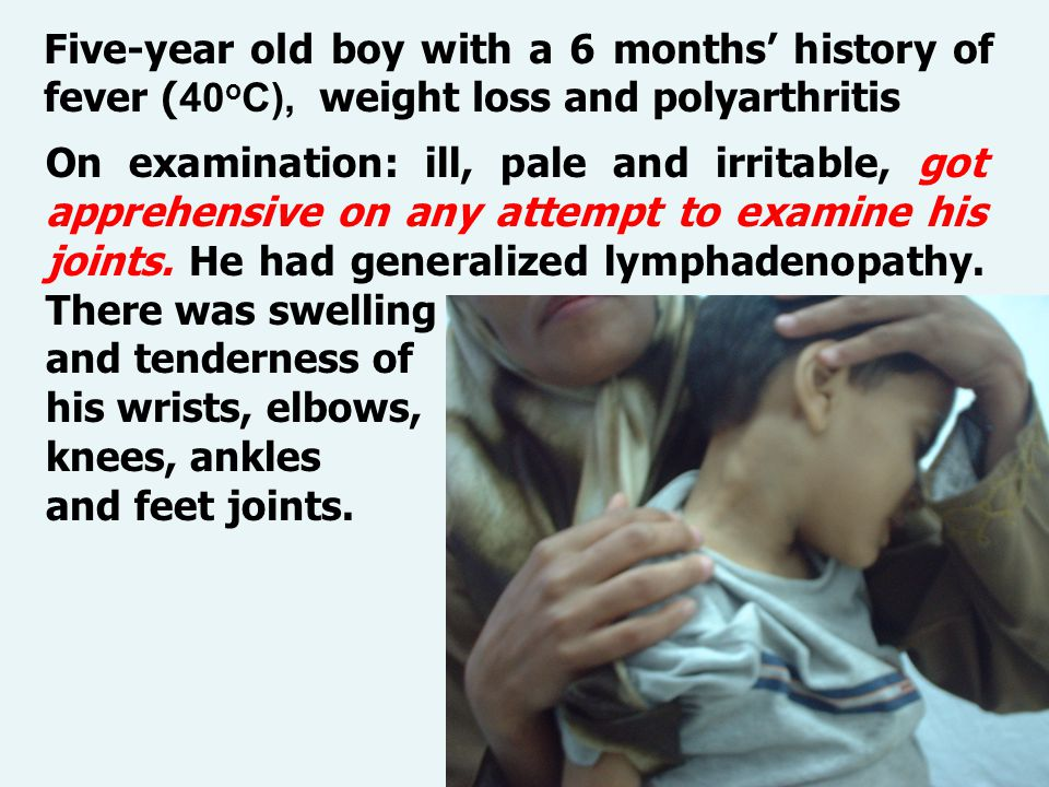 c Five-year old boy with a 6 months' history of fever ( 40 o C), weight loss and polyarthritis On examination: ill, pale and irritable, got apprehensive on any attempt to examine his joints.