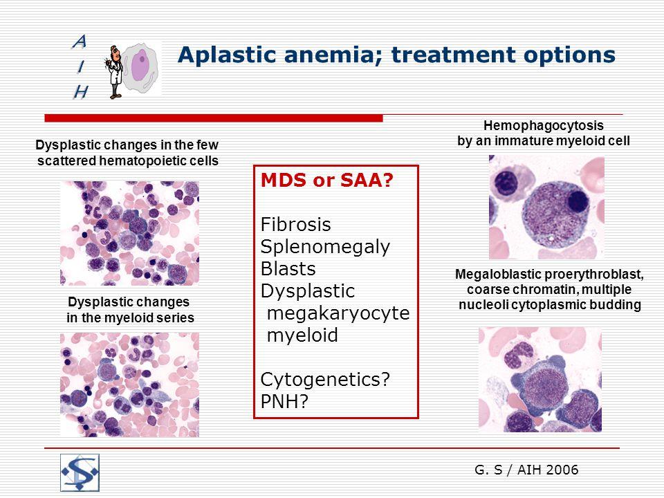 G. S / AIH 2006 Aplastic anemia; treatment options Megaloblastic proerythroblast, coarse chromatin, multiple nucleoli cytoplasmic budding Dysplastic c