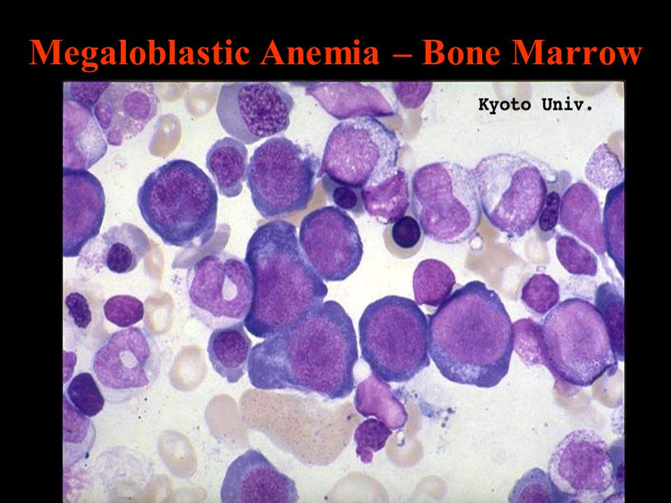 Megaloblastic Anemia – Bone Marrow