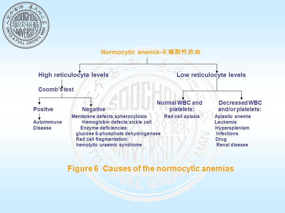 Normocytic anemia- 正细胞性贫血 High reticulocyte levels Low reticulocyte levels Coomb's test Normal WBC and Decreased WBC Positve Negative platelets: and/or platelets: Membrane defects:spherocytosis Red cell aplasia Aplastic anemia Autoimmune Hemoglobin defects:sickle cell Leukemia Disease Enzyme deficiencies: Hypersplenism glucose 6-phosphate dehydrogenase Infections Red cell fragmentation: Drug hemolytic uraemic syndrome Renal disease Figure 6 Causes of the normocytic anemias