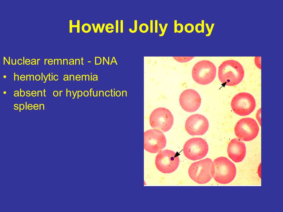 Elliptocytes/ovalocytes Abnormal cytoskeletal proteins Hereditary elliptocytosis