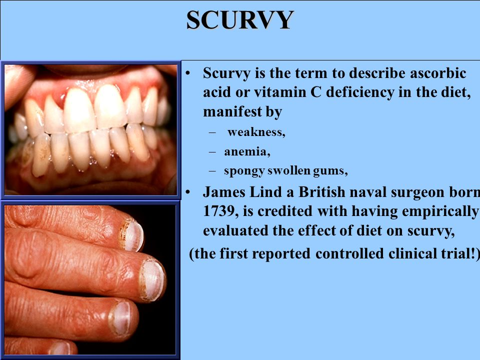 SCURVY Scurvy is the term to describe ascorbic acid or vitamin C deficiency in the diet, manifest by – weakness, –anemia, –spongy swollen gums, James Lind a British naval surgeon born 1739, is credited with having empirically evaluated the effect of diet on scurvy, (the first reported controlled clinical trial!).