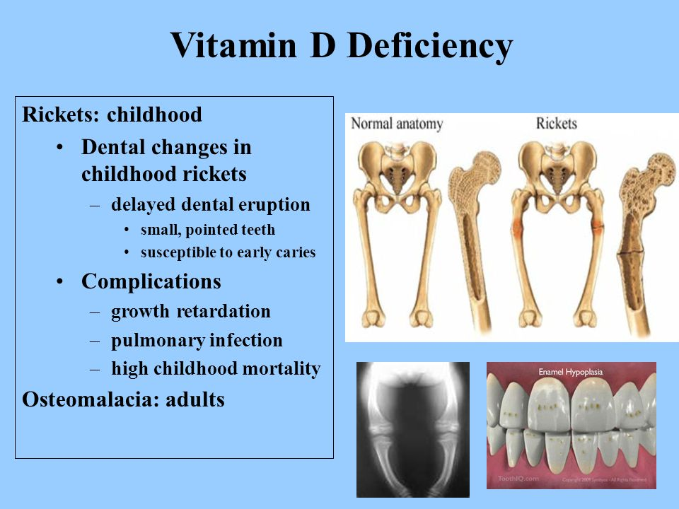 Rickets: childhood Dental changes in childhood rickets –delayed dental eruption small, pointed teeth susceptible to early caries Complications –growth retardation –pulmonary infection –high childhood mortality Osteomalacia: adults Vitamin D Deficiency